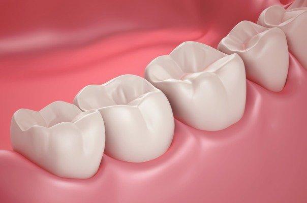 بهبود عملکرد ایمپلنت دندانی توسط محققان دانشگاه امیرکبیر