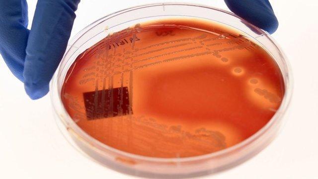ضرورت توجه به توسعه دانش میکروبیوتا در سیاست گذاری های پژوهشی نظام سلامت