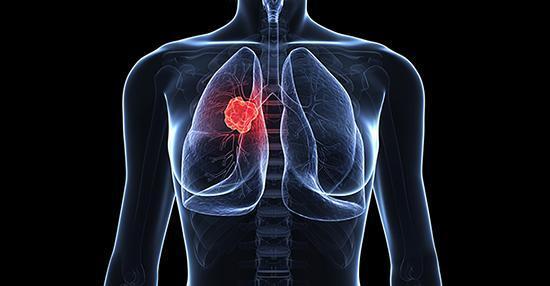 سرطان ریه؛ دردی که بهمن مفید را از بین برد