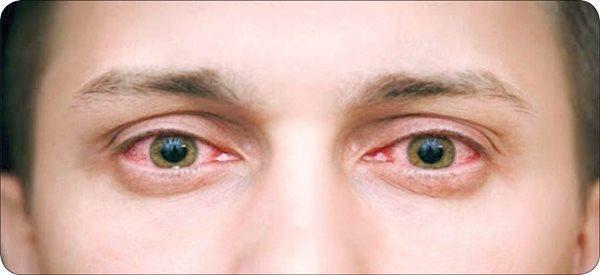 راهکارهای پیشگیری از خراش قرنیه؛ مشکل دردناک چشم